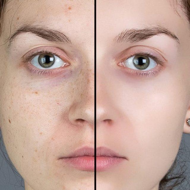 Blog IpsisPro Tratamento-de-pele-no-photoshop-640x640 Tratamento de pele no Photoshop – aprenda o passo a passo de 2 técnicas e veja 2 dicas matadoras