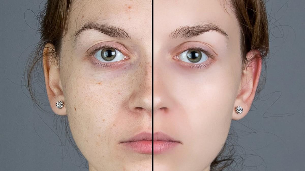 Blog IpsisPro Tratamento-de-pele-no-photoshop Tratamento de pele no Photoshop – aprenda o passo a passo de 2 técnicas e veja 2 dicas matadoras