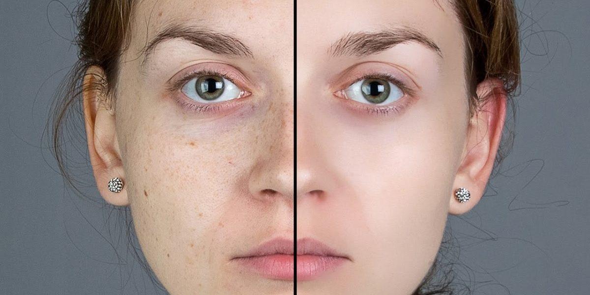 Tratamento de pele no photoshop